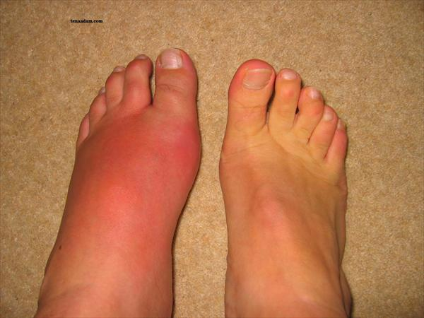 Gout in Hands Gout806