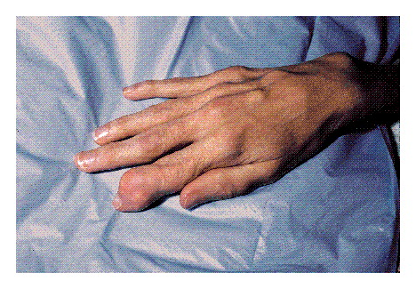 Chronic Gout: Recognizing the Symptoms of Gout Gouty-Arthritis