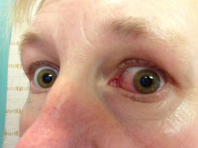 Sinus Infection, are You Being Troubled by Sinusitis? Hayfever-eyes08