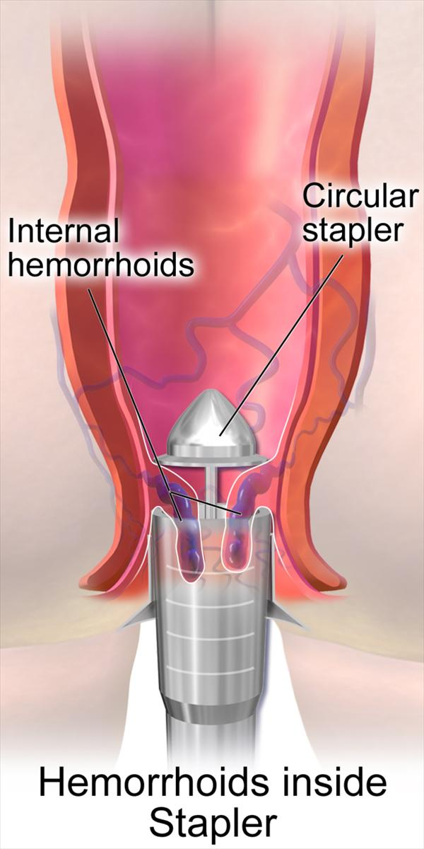 Why You Should Think Twice Hemorrhoid-Treatment44