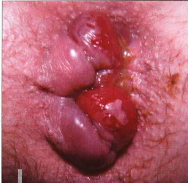 External Hemorrhoid Surgery Hemorrhoid36