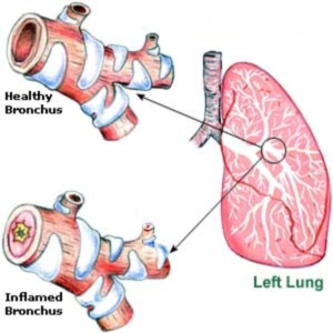 Is Bronchitis Ching to Others. Causes of Bronchitis  Herbal-Remedies-For-Bronchitis65