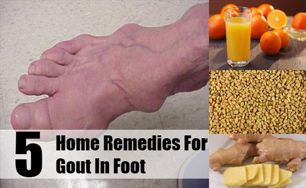 Gout Remedies Home-Remedies-For-Gout-In-Foot78