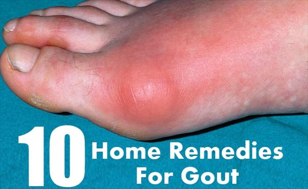 Gout Foods Home-Remedies-For-Gout70