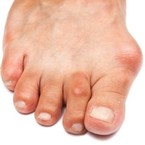 Uric and Home Remedies for Gout Home-Remedies-For-Gout83