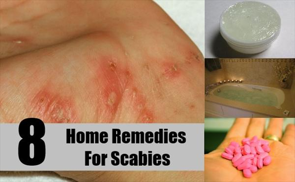 Acute Bronchitis Home-Remedies-For-Scabies3