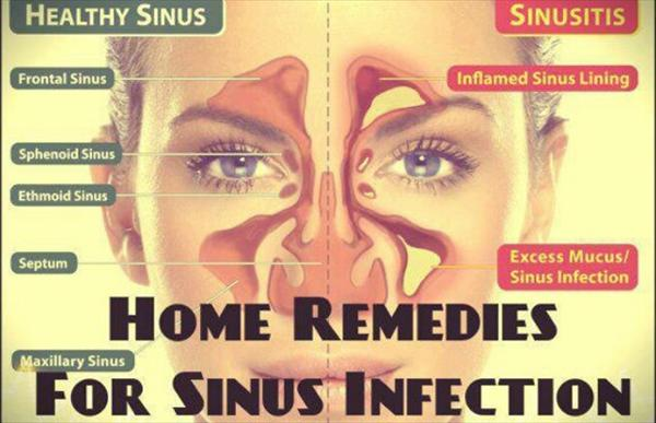 Sinus Fungal Infection Home-Remedies-For-Sinus-Infection-x