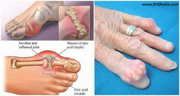 Preventing Gout and Gout Treatment How-To-Quickly-Remove-Uric-Acid-Crystallization-From-Your-Body-To-Prevent-Gout-And-Joint-Pain3