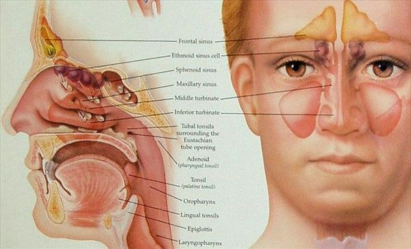 Sinusitis Pressure, Tips on How to Treat Sinus Infection How-to-avoid-and-naturally-cure-your-sinus-infection3