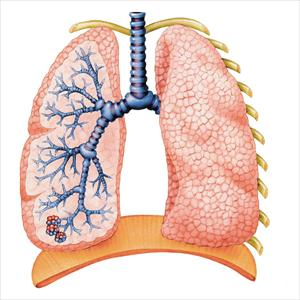 Bronchitis Caused. Ways to Cure Bronchitis Lungs4543