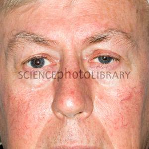 Draining Your Sinuses. Medication and Natural Treatments M-Sinusitis-SPL