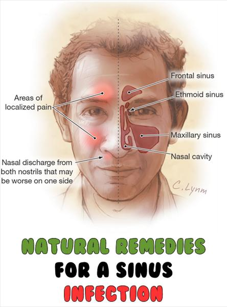 Chronic Sinusitis Allergies, Cure Sinus Infections Natural-Remedies-For-A-Sinus-Infection1