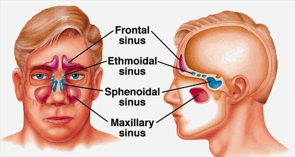 Side Effects of Sinus Medication Natural-Ways-to-Cure-Sinusitis63