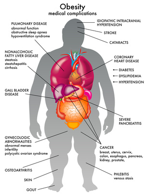 List of Health Problems Because of Obesity ObesityHealthChart