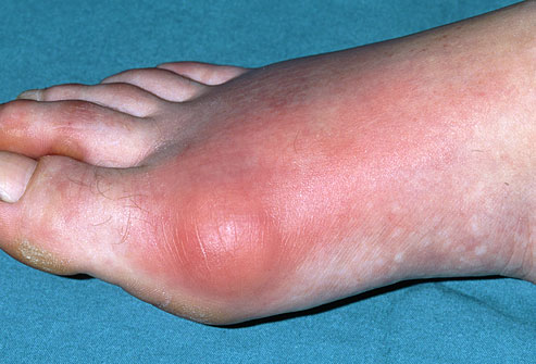 Treating Gout PRinc-photo-of-inflamed-gout-toe66
