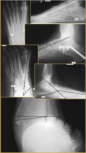 Magnesium and Gout and Posterior Tibial Tendon Dysfunction PTTD-pic