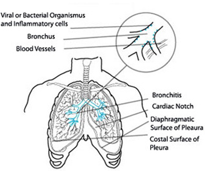 is Chronic Bronchitis Contagious? Pathophysiology-On-Chronic-Bronchitis2