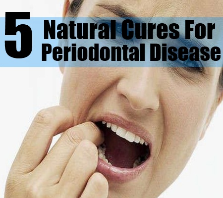 Natural Methods to Cure the Disease of Gout Periodontal-Disease