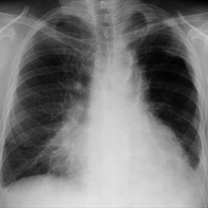 Bronchitis Lungs Respiratory: Alternative Treatment RadAspirationPneumoniaPaMedPix6