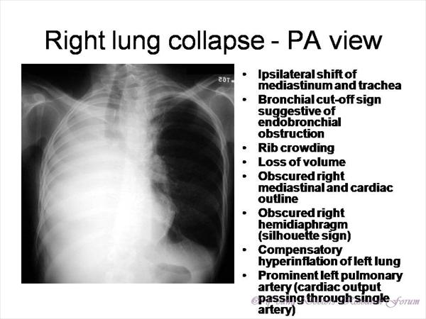 [Image: Right-lung-collapse-PA-view-Chest-x-rays...eases.jpeg]