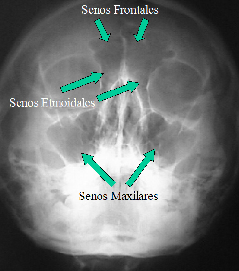 Various Causes and Possible Treatment of Sinus Infection Senos-anatomía