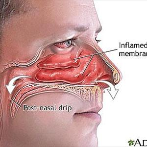 Sinus Cavities Signs-Of-Sinus-Infection24
