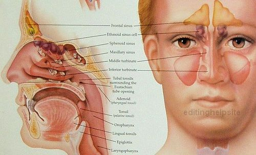 Sinus Infections: Sinus Infection Signs-Symptoms-Sinus-Infection86