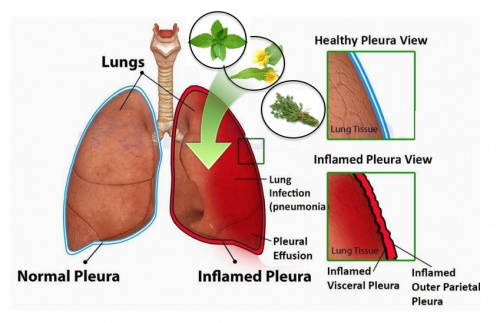 Lung Inflammation Signs-of-Lung-Inflammation