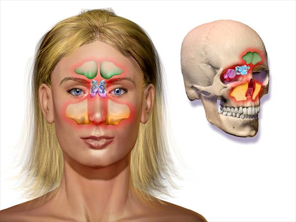 Sinus and can You Find Comfort After Knowing  Sinus-Infection-Home-Remedies-Sinusitis10