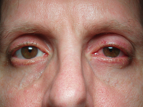 Sinus Infection Sinus-Infection-Methodsofhealing-com