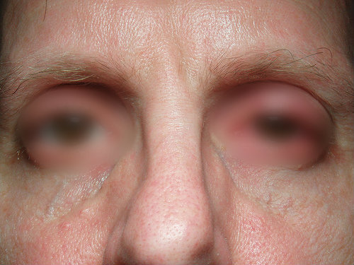 Side Effects of Sinus Medication Sinus-Infection7800