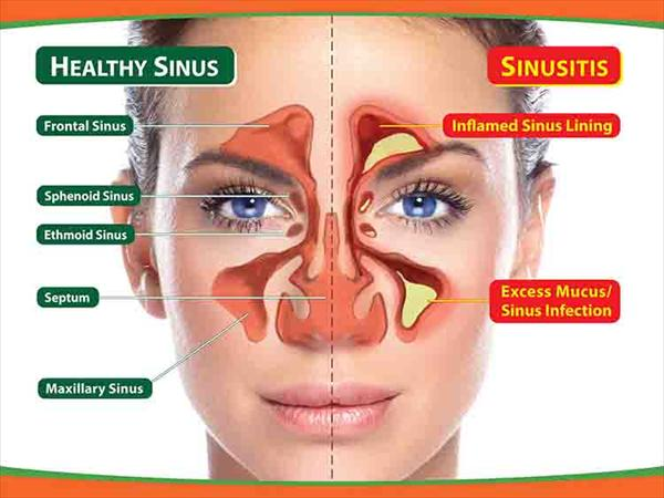 Sinusitis Cure and How Many Treatments for Sinus Infection Sinus-Infection991