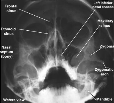 Sinus Headaches and Sinus Pain, Sinusitis, and the Migraine Sinus-X-Ray