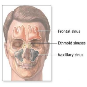 [Image: Sinus-headaches-x.jpeg]