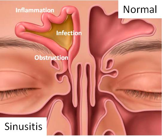 Sinuses Sinusitis Sinusitis-Anatomy-copy68