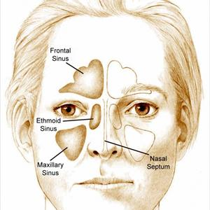 Say Goodbye to Microbial Sinusitis Inside 3 Easy Steps Sinusitis-Head4