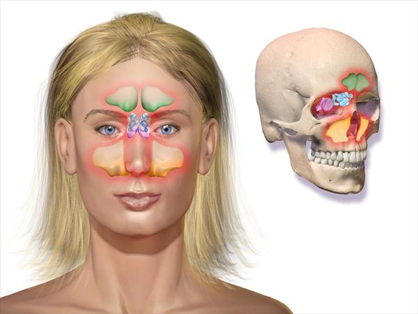 Sinus Infection Symptoms and Sinus Problems? No Problem At Sinusitis402