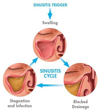 [Image: Sinusitis675.jpeg]