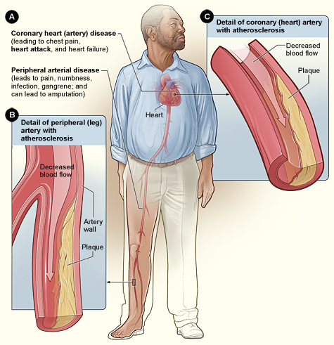 Does Food Effect Your Pain? Smoking-and-Atherosclerosis