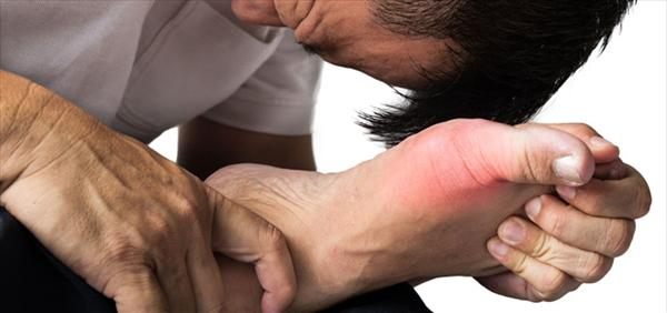 a Gout Treatment Diet You can Enjoy Steps-to-Prevent-Gout-Attacks