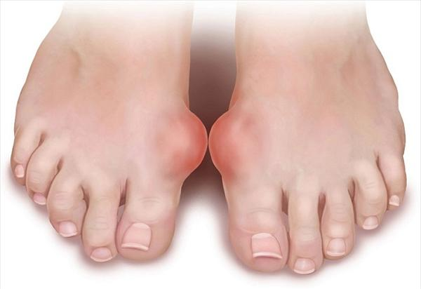 Gout Signs and Gout Alternative Treatments- 5 Free Gout Symptoms-of-gout33