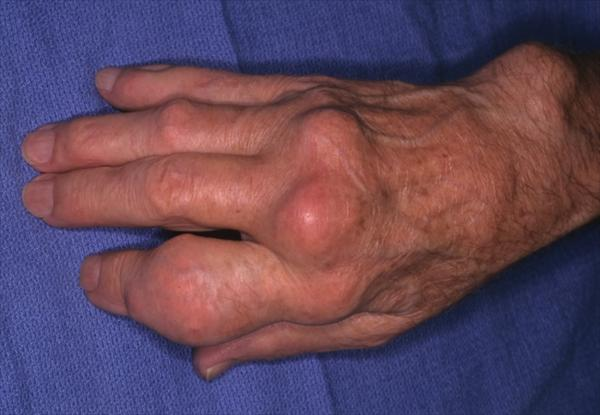 Arthritis Gout, How can Gout be Diagnosed Tophaceous-Gout