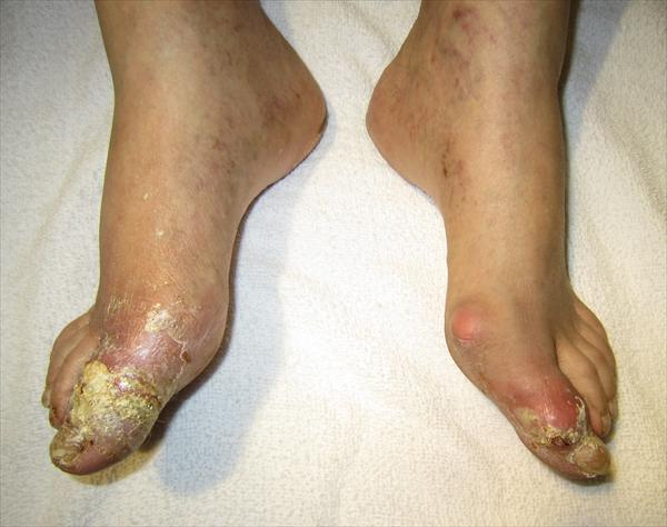 Gout. What is Gout? Tophigout68