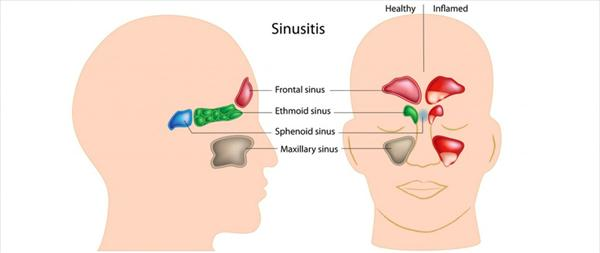 Nasal Congestion and Sinus Infection Treatment At Home Treat-Your-Sinus-Infection-at-Your-Home-With-This-Efficient-Home-Remedies-x
