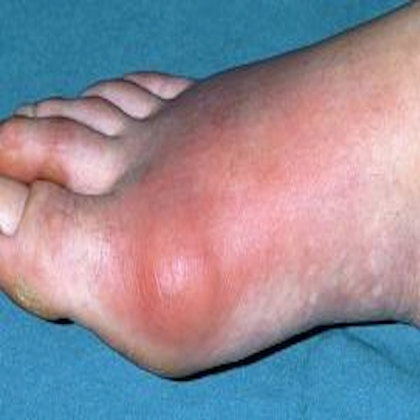 Gout Remedy Report Cures Arthritis in Toe Permanently Treatment-For-Gout578
