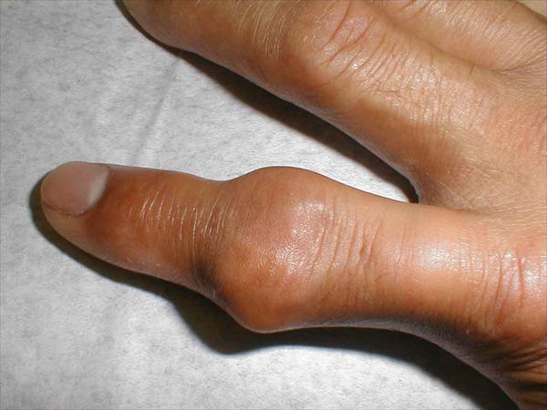 Gout: Its Symptoms and Levels Upper-tophaceous-gout71
