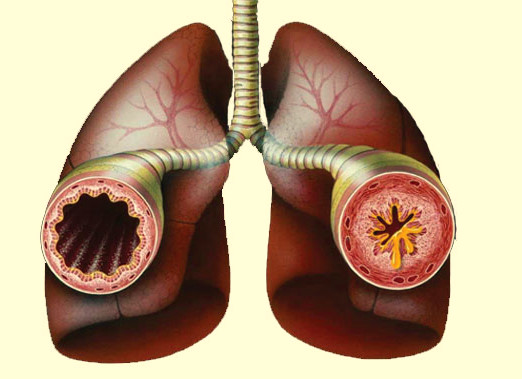 Bronchitis Blut. Diseases that Affect the Respiratory What-Are-the-Causes-of-Asthma7