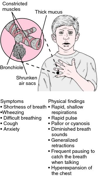 Bronchitis Caused by Smoking and is Asthma Like Bronchitis? X-A