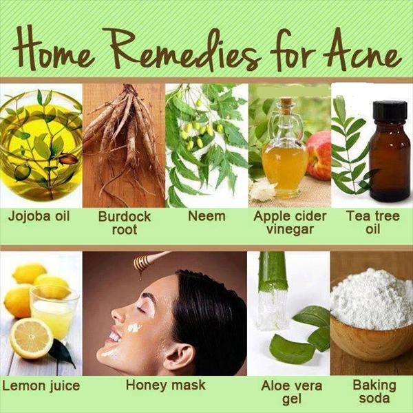 Natural Home Remedies Acnee5