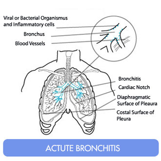 Bronchitis and Get Rid of Mucous and Ways to Get Rid  Acute-bronchitis33